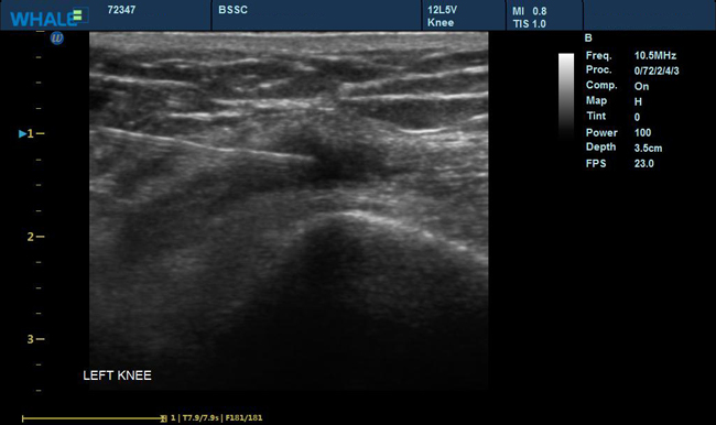 Sigma P5 Clinical Images Knee